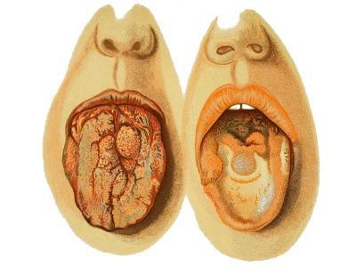 Oral STI